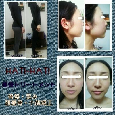 骨盤・歪み・頭蓋骨・小顔矯正で体質改善で美肌になれちゃう~😌🌈💠  化粧品、フェイシャルに👛注ぎ込む前に 先ずは【美肌トリートメント】