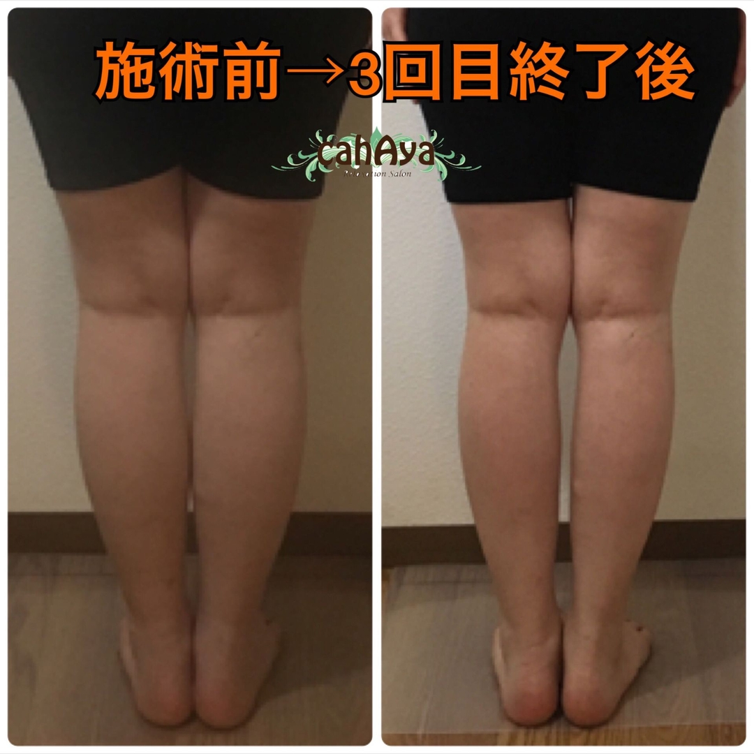 身体の中から綺麗と健康を目指すセラピストayakoさんのリラクゼーションの写真。テーマは『むくみ解消専門コース、足のむくみ、むくみ解消』